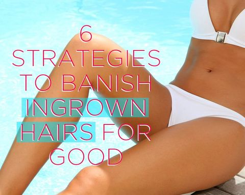 6 Strategies to Banish Ingrown Hair for Good