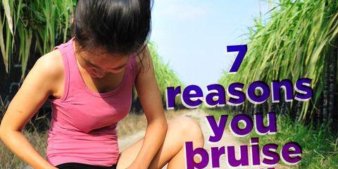 bruise-easily1.jpg
