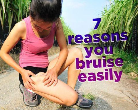 7 Reasons You Bruise Easily
