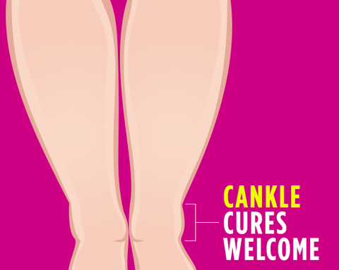Can You Get Rid of Cankles?