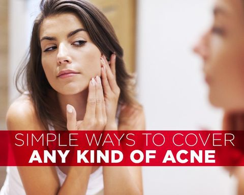 Simple Ways to Cover ANY Kind of Acne