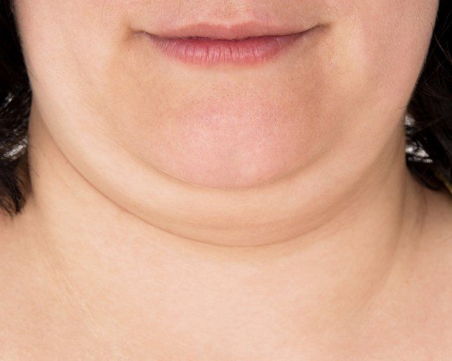 Types of chins and what they mean