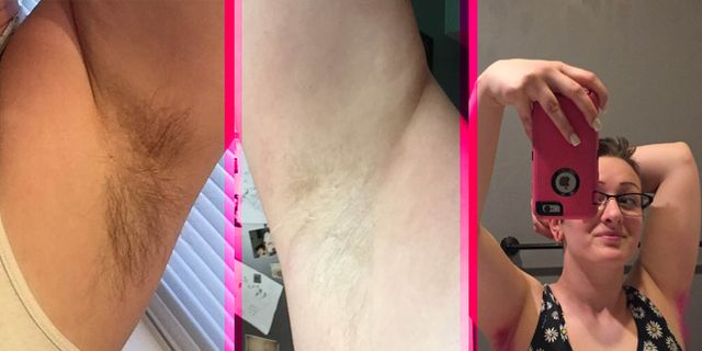 When does armpit hair stop growing