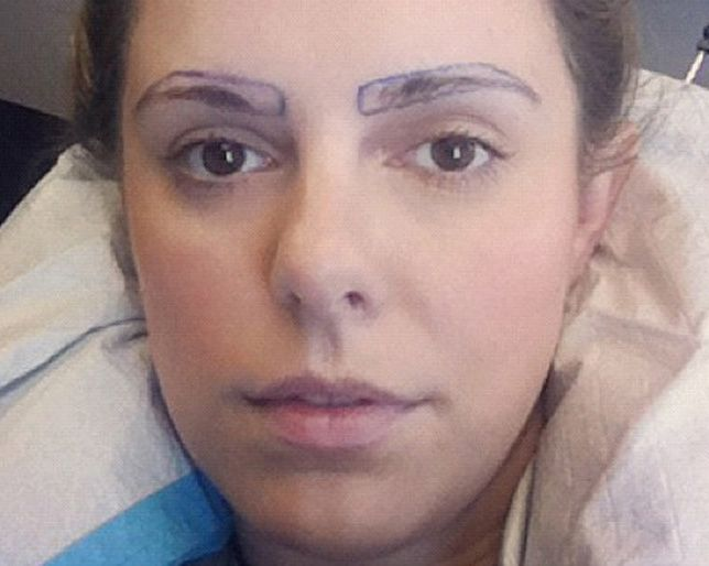 The True And Oddly Fascinating Story Of Eyebrow Transplants