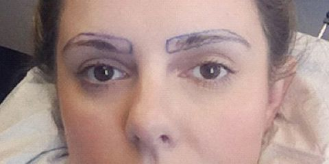 eyebrow-transplant.jpg