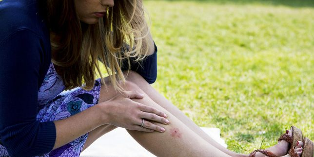 Lyme disease study finds reported cases involving kids