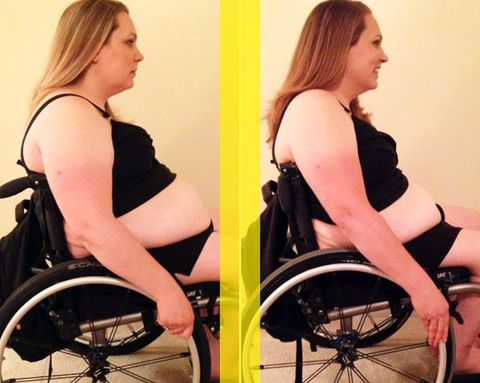 How One Paralyzed Woman Lost Almost 60 Pounds