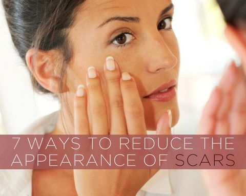 7 Ways to Reduce the Appearance of Scars