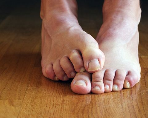 5 Ways to Deal With Stanky Feet
