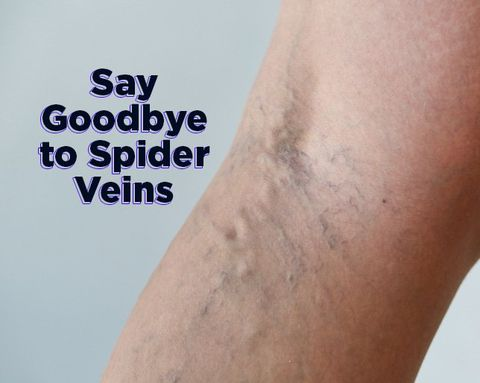 How to Get Rid of Those EVIL Spider Veins