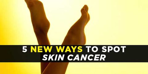 spot-skin-cancer-main.jpg
