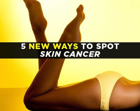 5 New Ways to Spot Skin Cancer