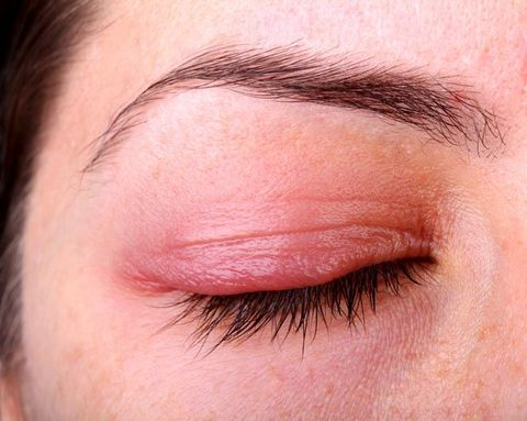 Why You Get Styes—And How to Cure Them