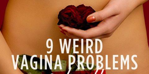 vagina-problems.jpg