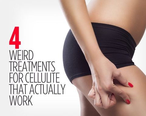 4 Weird Treatments for Cellulite That Actually Work