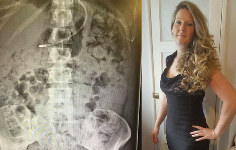 Botched Surgery Leaves Woman Drowning In Poop Women S Health