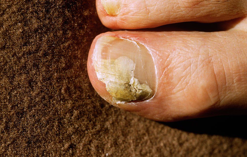 Best natural treatment for foot fungus