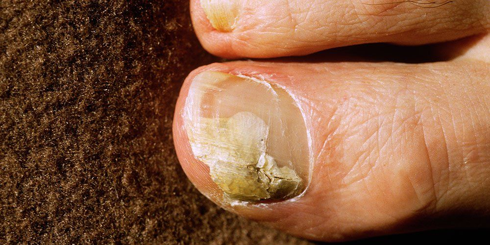 natural ways to cure nail fungus