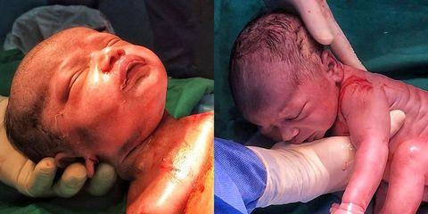 Child, Pain, Head, Nose, Baby, Cheek, Arm, Birth, Muscle, Flesh,