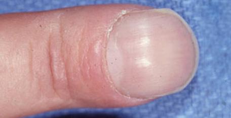 8 Weird Things That Can Happen to Your Fingernails—and What