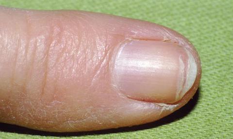 Fingernails on small indents fingernail indentation