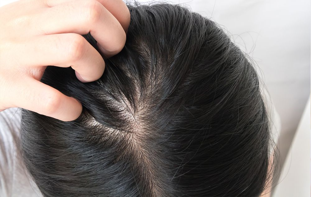 The Best Shampoos For Thinning Hair Best Shampoo For Thinning Hair