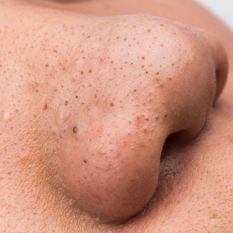 12 Face Bumps You Get Under Your Skin and How to Get Rid of Them