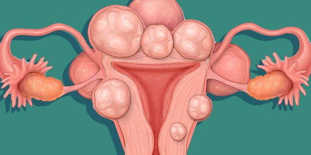 Women Are Now Posting Photos Of Their Uterine Fibroids All Over