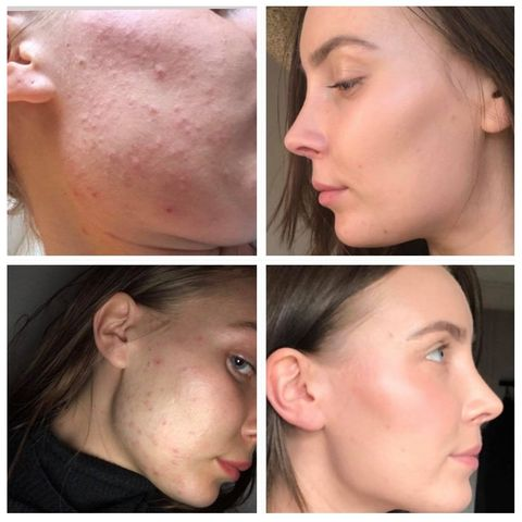 """I Finally Cleared Up My Acne By Giving Up Dairy and Seeing a Naturopath"""