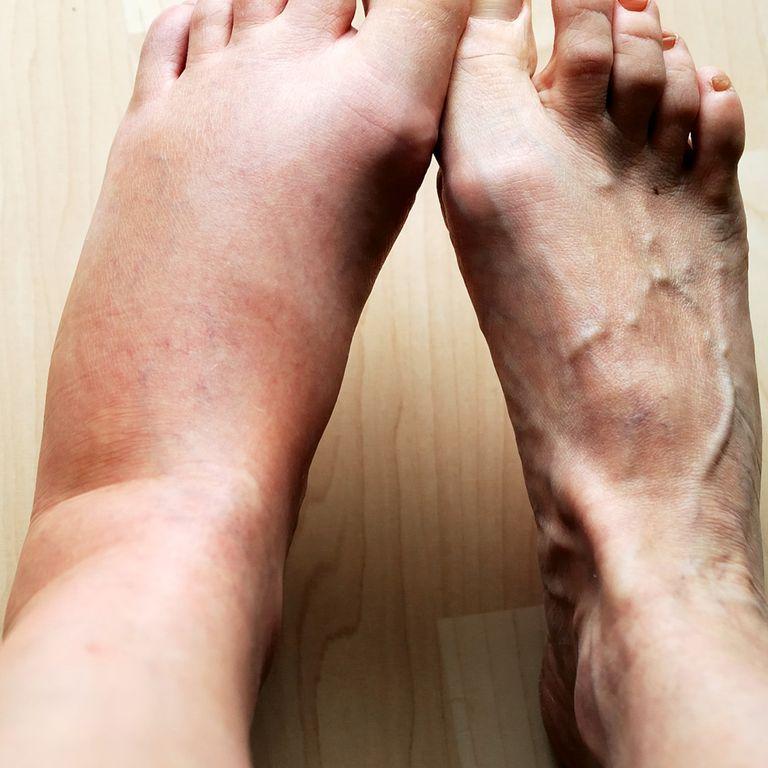 36 Health Symptoms You Should Never Ignore