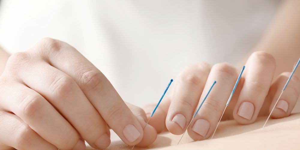 I Tried Acupuncture To Get Pregnant And This Is What It Was Like