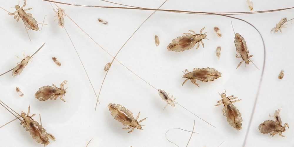 This 3-Step Natural Head Lice Remedy Works For My Family Every Time | Rodale's Organic Life