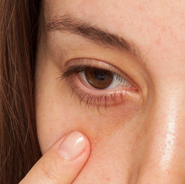 一個女生指著黑眼圈