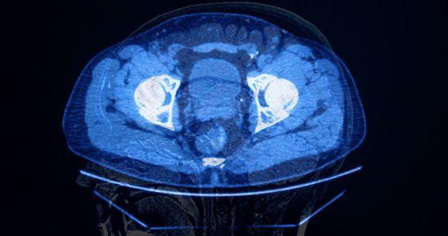 abdominal brain concept