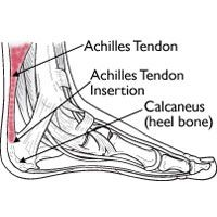 How Much Energy Does Your Achilles Tendon Store?