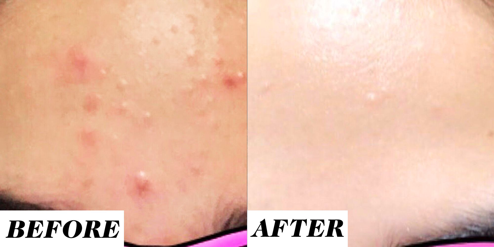 This Retinol Before And After Acne Treatment On Reddit Is Going Viral