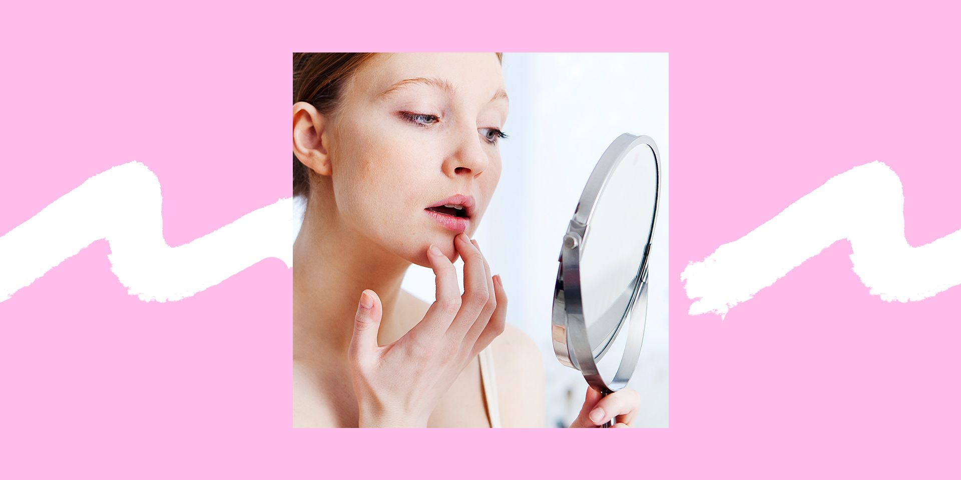 How to Get Rid of a Lip Pimple Fast