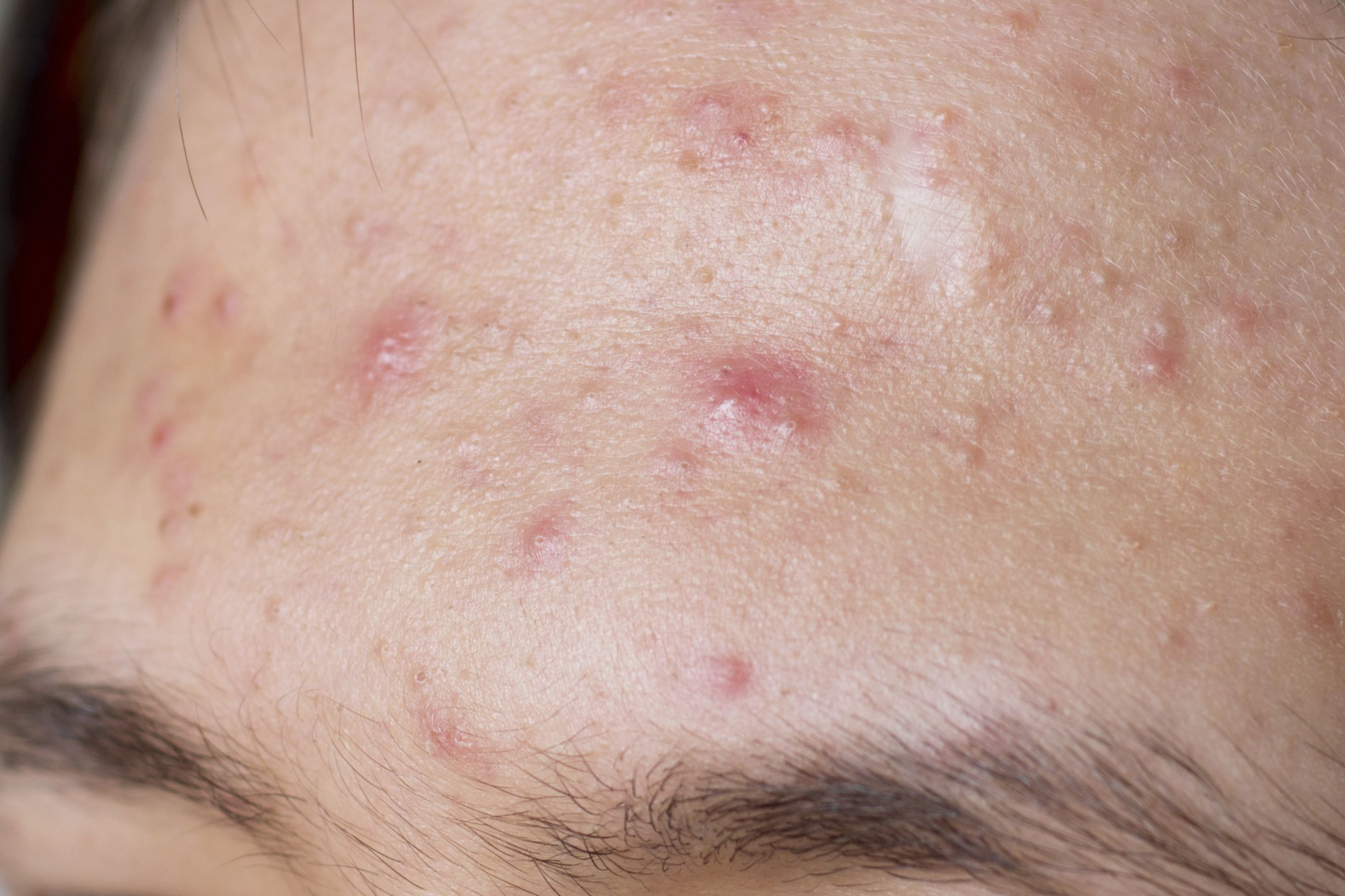 8 Common Skin Problems And How To Fix Them Acne And Rosacea Advice