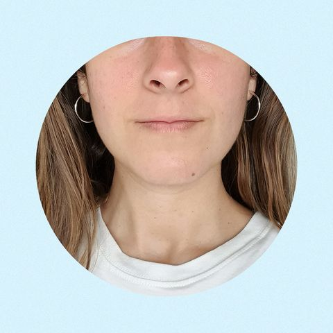 como quitar huecos del acne