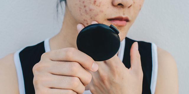 acne da stress