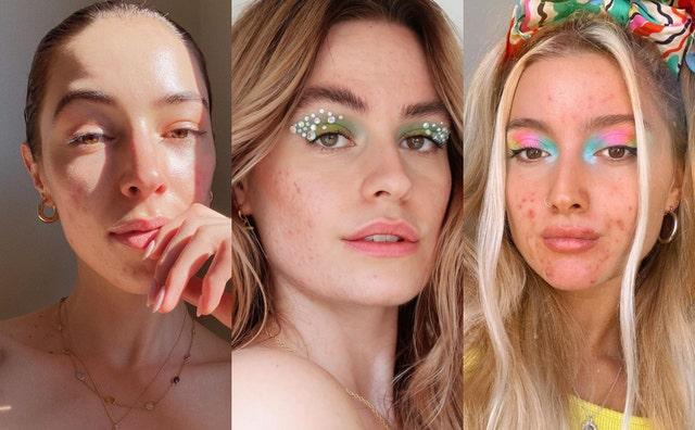 normalización del acné en instagram