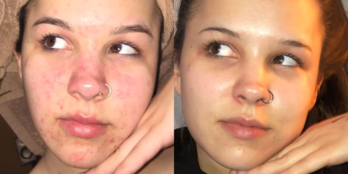 This Woman Treated Acne With 3 Products And The Before And After Pics Are Insane