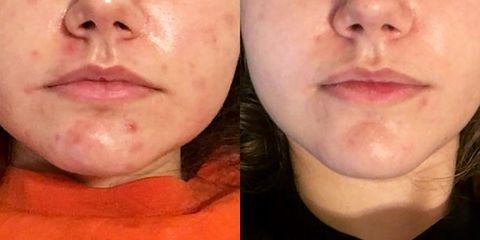 How Rosehip Oil Got Rid of This Woman's Acne in Only 3 Weeks