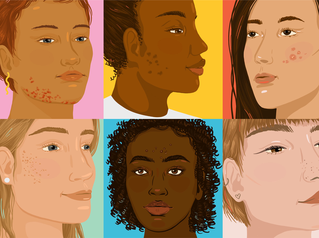 How To Cover Up Every Type Of Acne