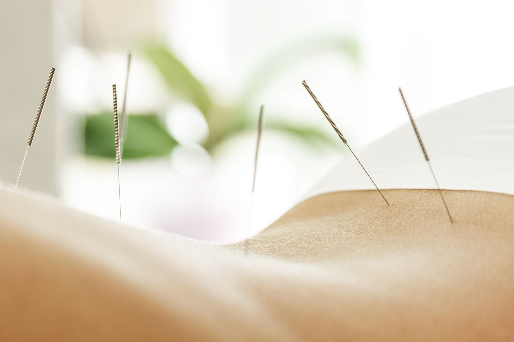 Acupuncture for Weight Loss: Does It Work