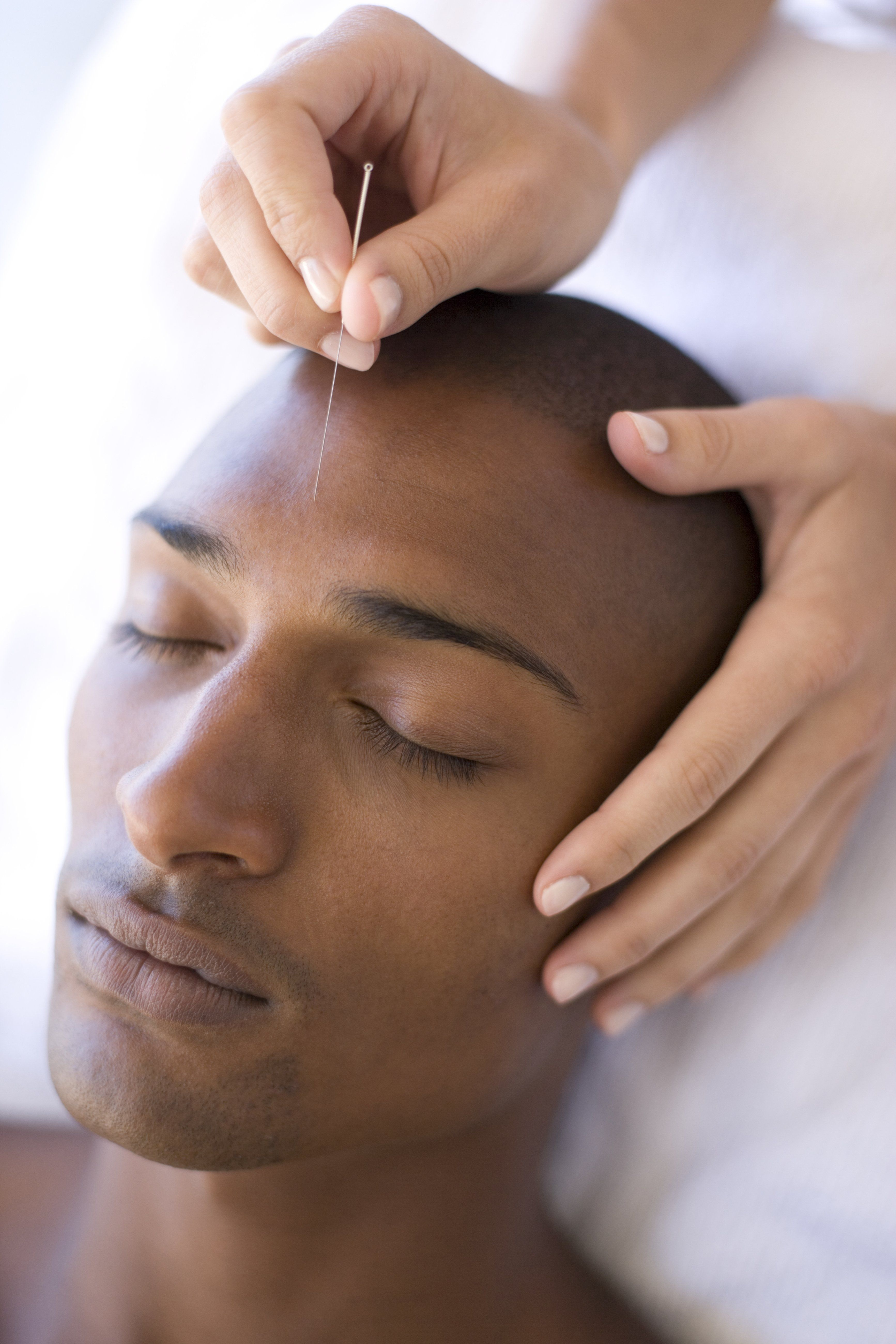 Acupuncturist inserting needle into client forehead