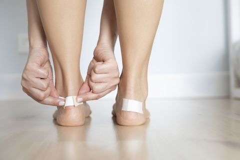 Blister Treatment and Prevention Tips That'll Save Your Poor Feet