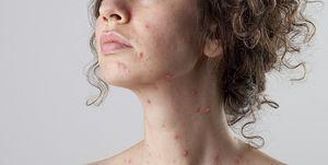 chickenpox varicella zoster virus