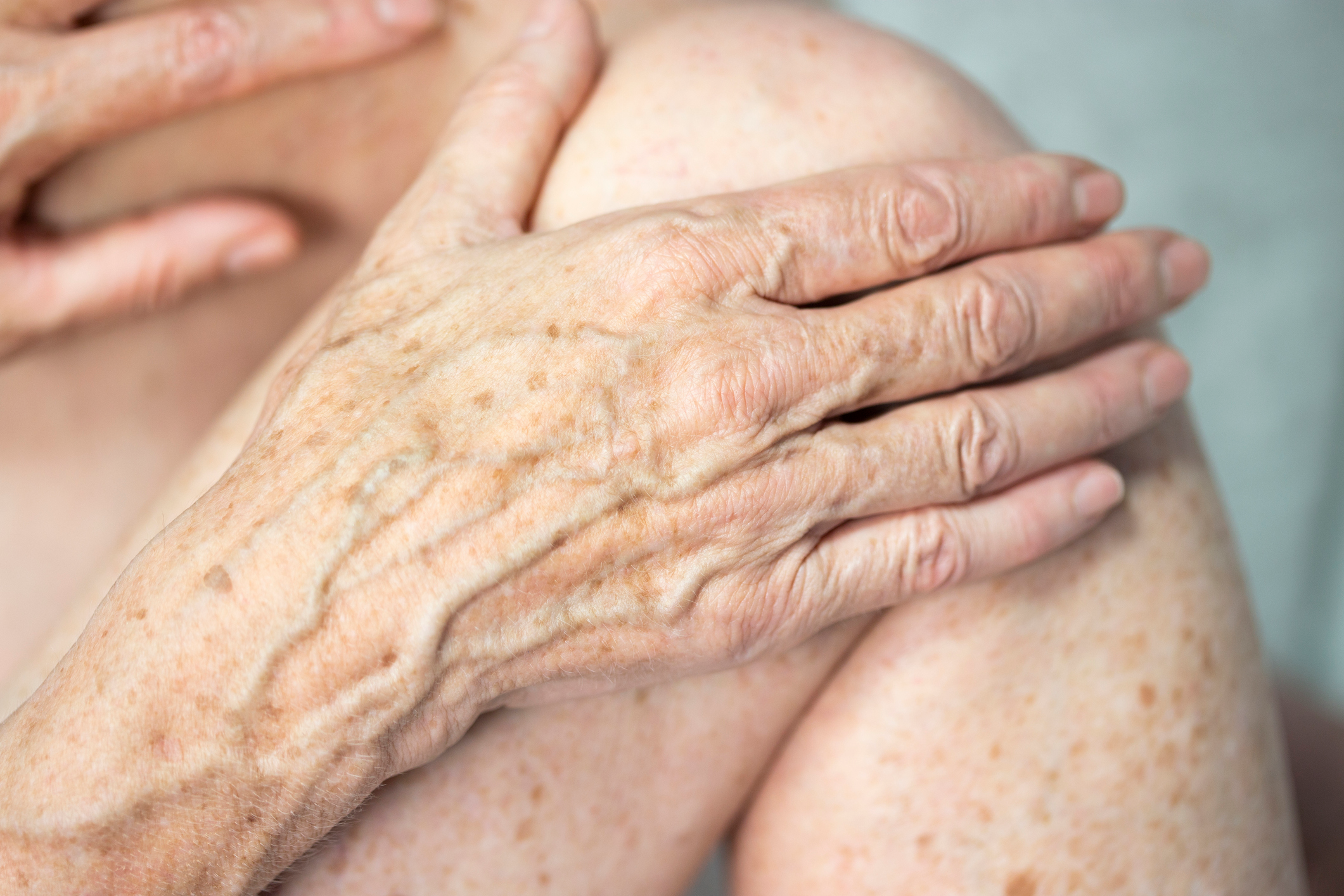 6 Ways to Get Rid of Age Spots on Your Hands, Say Dermatologists