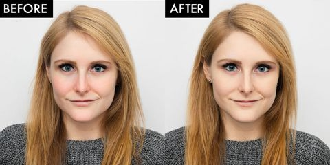 I Got a Photo facial To Help With My Rosacea - Broadband